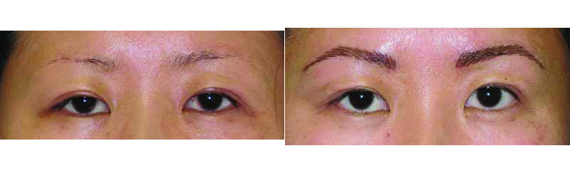 Before/after FeatherStroke eyebrow tattoo.