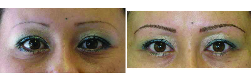 Before/after picture, cosmetic eyebrow tattoo.