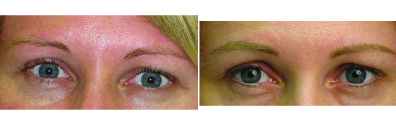 Before and after photos of blonde permanent eyebrows.