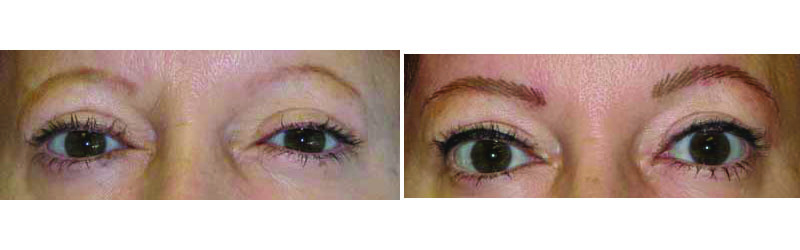 Before/after hair-stroke permanent eyebrows.