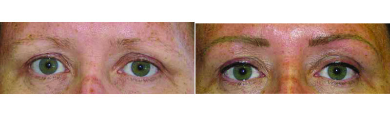 Permanent eyebrows before/after photos.
