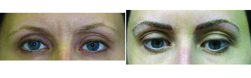 Before and after photos of FeatherStroke Permanent Eyebrows.