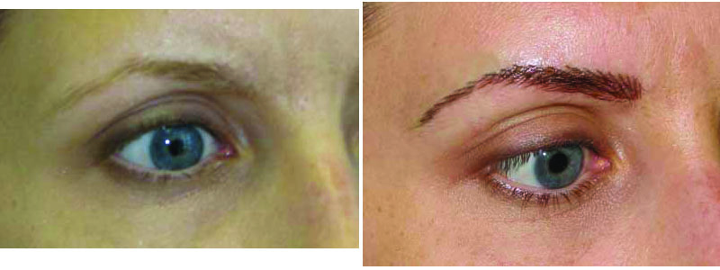 Before and after permanent eyebrows, hair-strokes.